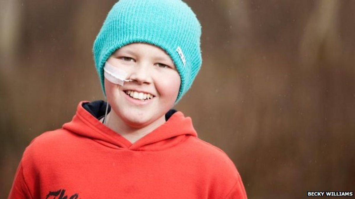 Раком фото мальчики 14 фотография