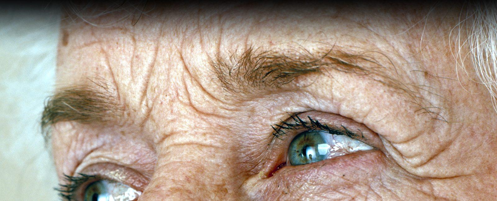 Tokeo la picha la wrinkles