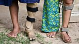 Children fitted with prosthetic and orthotic devices