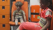 Omran 'is a very lucky child' - doctor