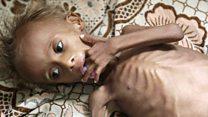 Al borde de la hambruna: la tragedia de más de un millón de niños desnutridos por la cruenta guerra de Yemen