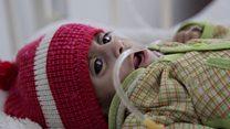BM: 1.5 milyon çocuk açlık nedeniyle ölümle karşı karşıya