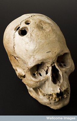 Trepanned Skull