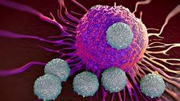 Cancer patients surviving longer in the UK 英国癌症患者存活时间延长
