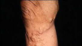 Varicose Veins