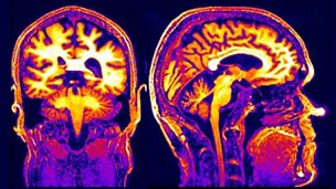 The Life in My Head: From Stroke to Brain Attack