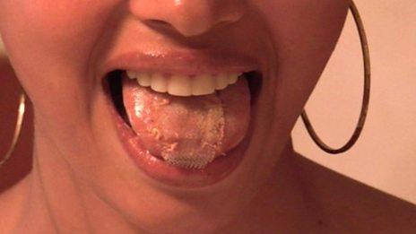 tongue mesh