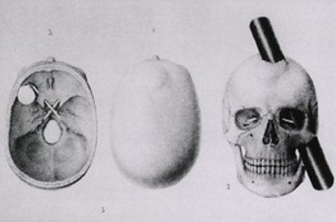 Phineas Gage's skull with bar