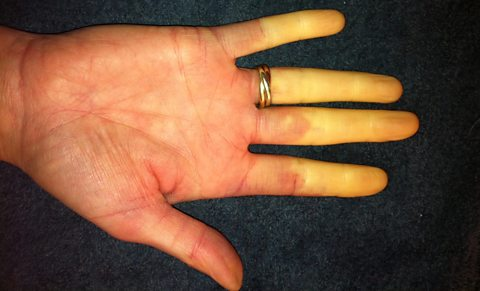 Rosie Toon's hand with Raynaud's