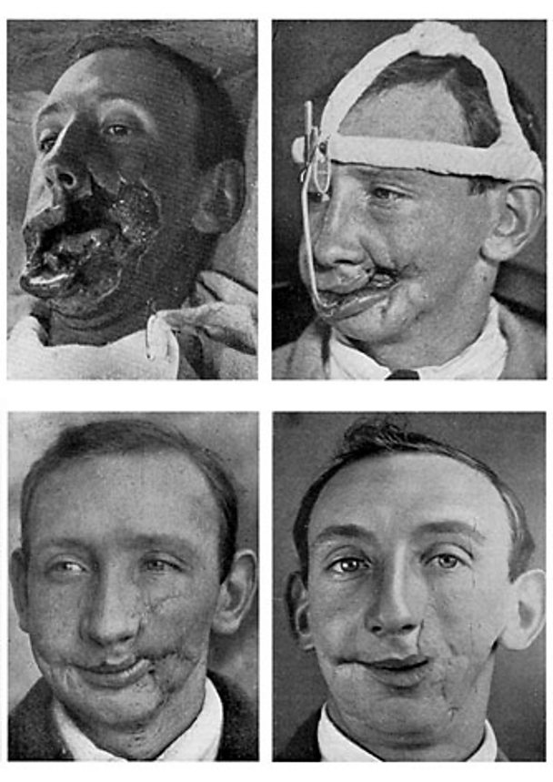 Four views of facial reconstruction after a war wound, July 1916