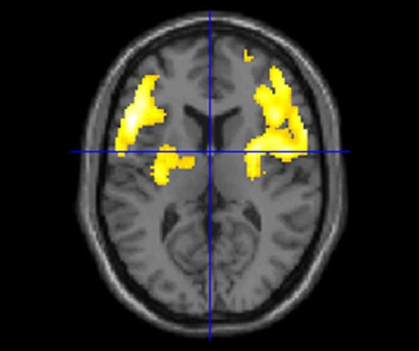 fMRI_VK.jpg