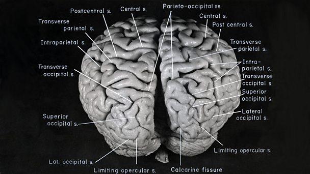 Annotated photograph of Einstein's brain