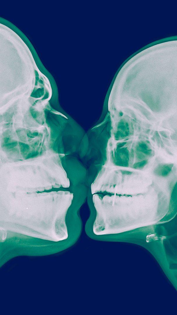 DRMD4 M Alamy x ray kiss