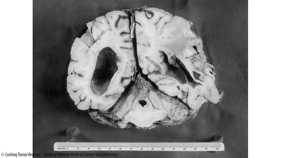 Brain Surgery's Earliest Patients