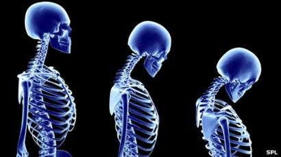 Ageing skeleton