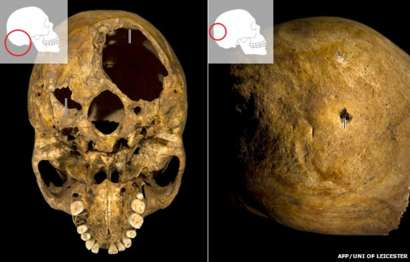Image showing Richard III skull where the wounds are evident