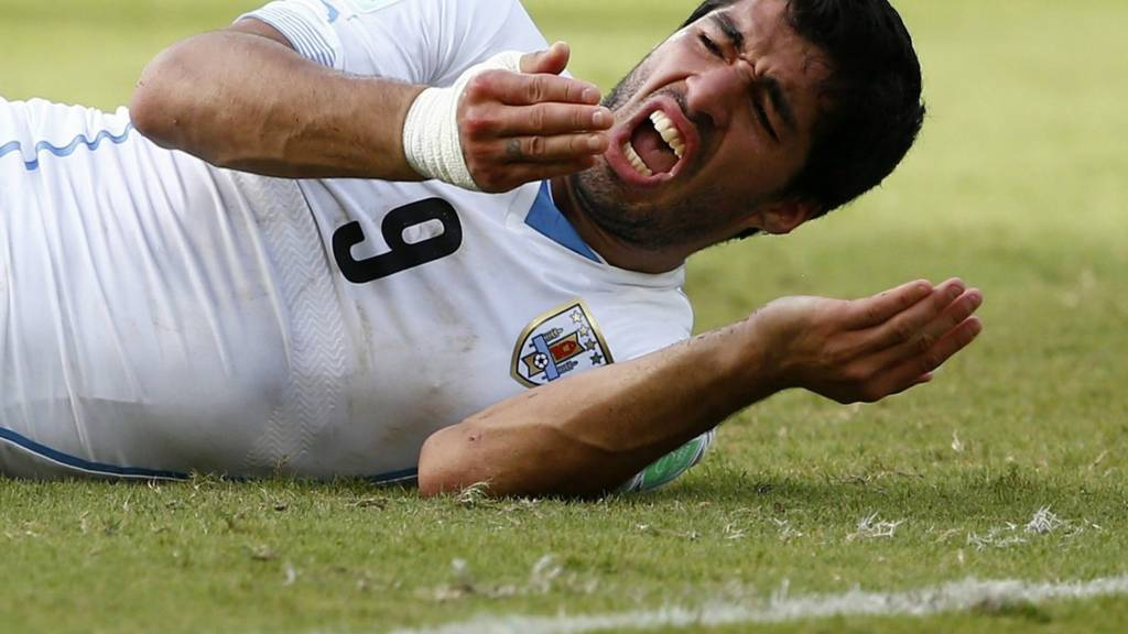 Luis Suarez following the bite he was banned for at the World Cup 2014