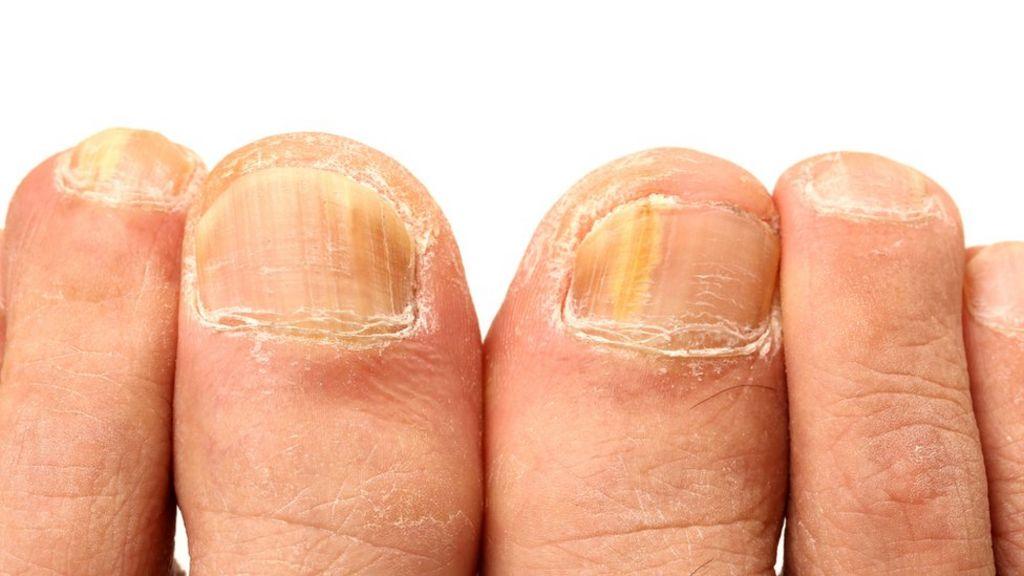 El ungüento salicílico del hongo de la piel