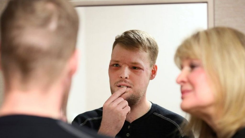 Face transplant recipient overwhelmed by result - BBC News