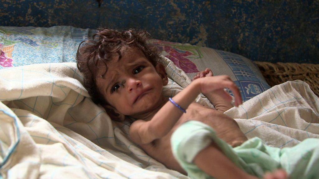 أطفال اليمن يعانون من سوء التغذية والمجاعة تهدد أغلب السكان - BBC Arabic