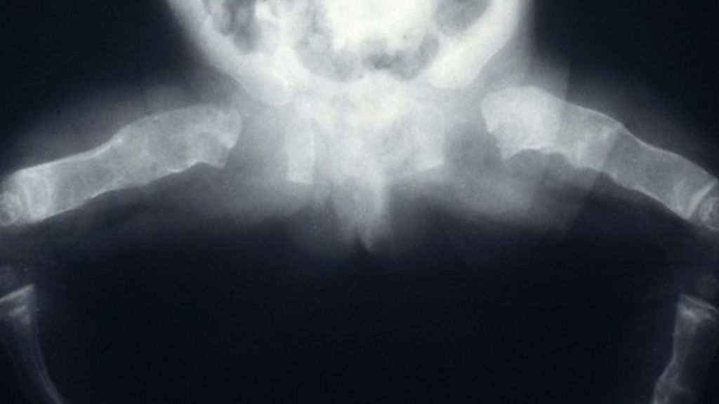 'Pregnancy fluid' reverses ageing bones - BBC News