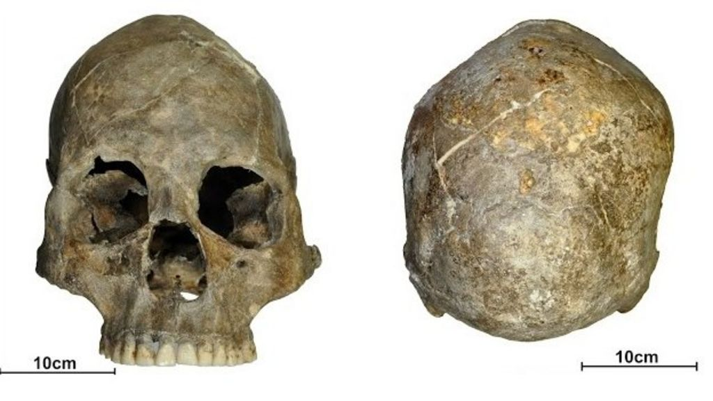 Dundee scientists probe Skull
