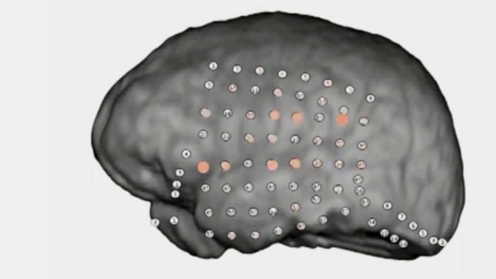 Brain's party noise filter revealed by recordings - BBC News