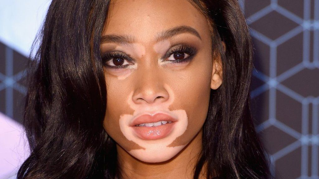 100 women 2016 model winnie harlow on confidence and