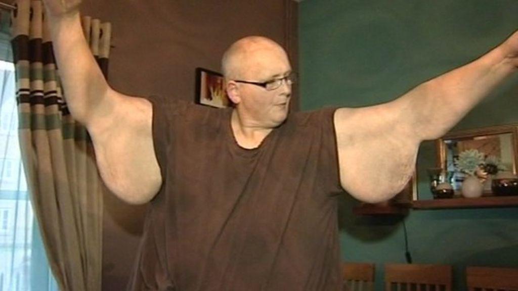 World s fattest man paul have hit