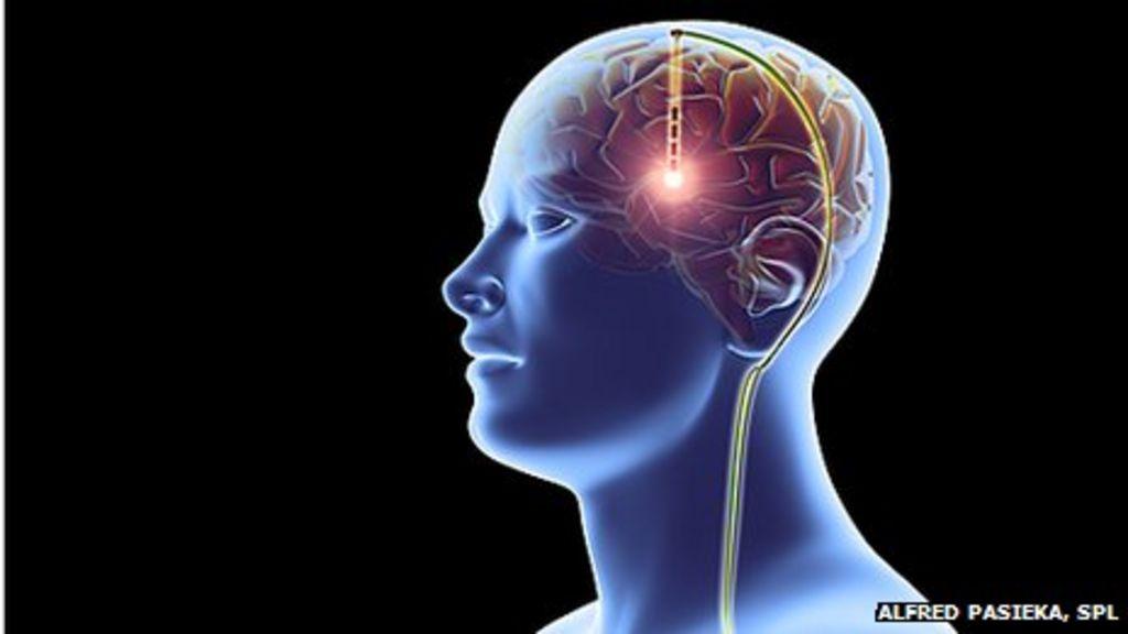 Deep brain stimulation 'helps in severe anorexia nervosa' - BBC News