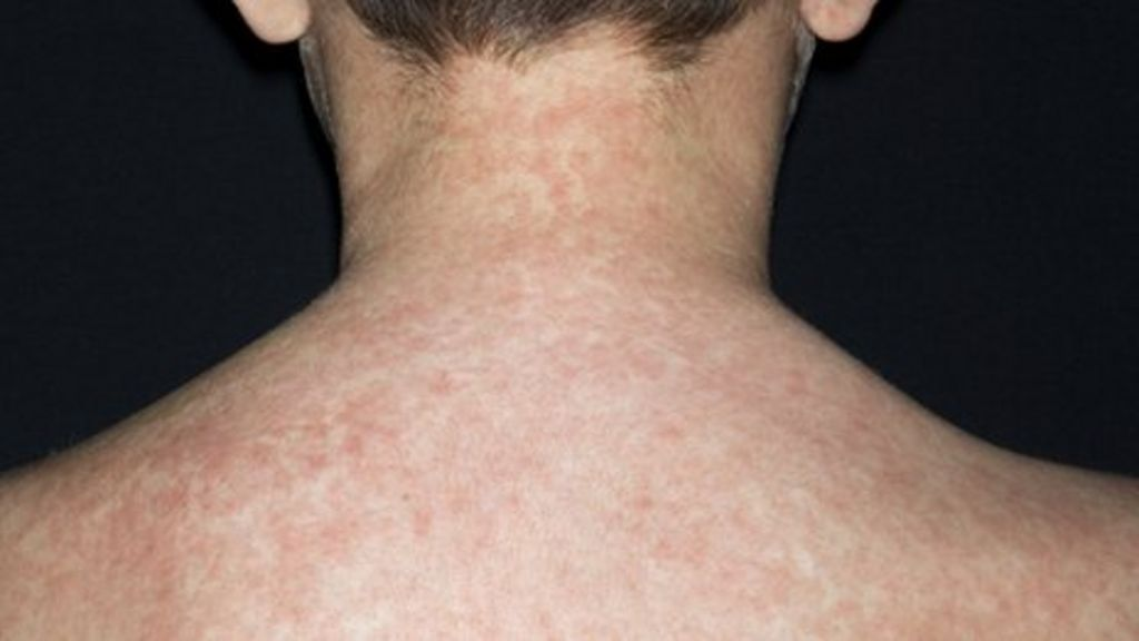 'Death risk' in Swansea measles outbreak - BBC News
