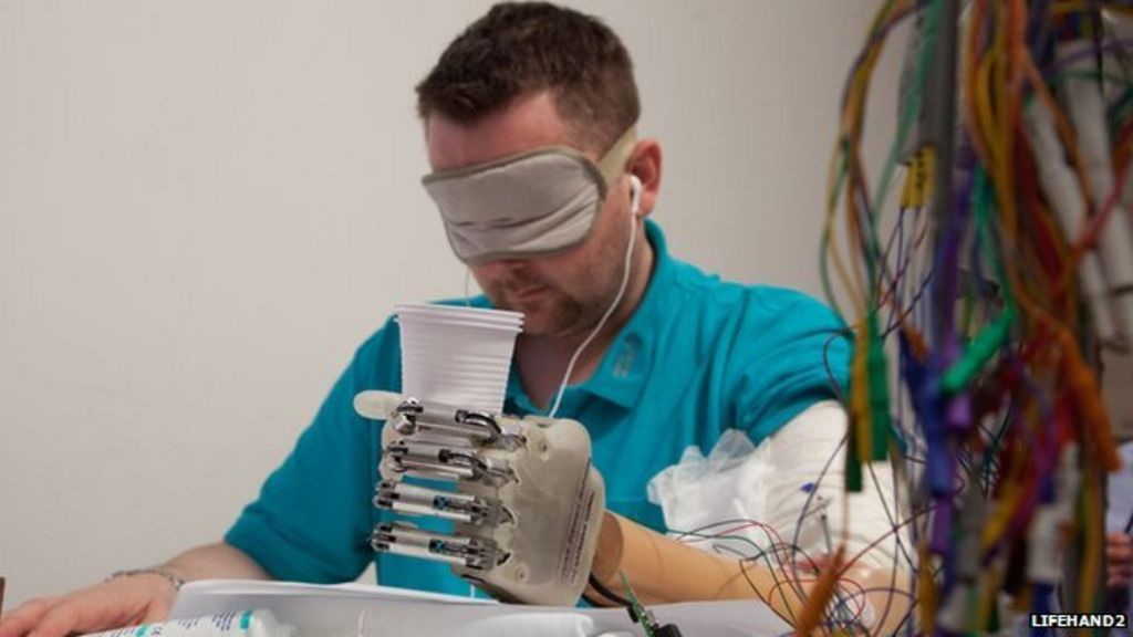 Bionic hand allows patient to 'feel' - BBC News