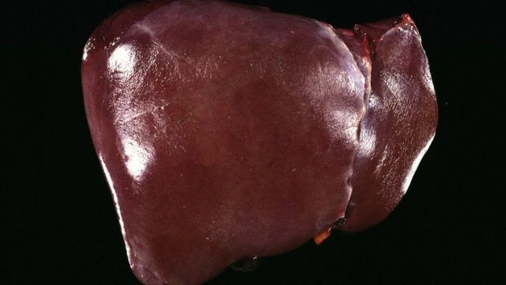 Report cites 'scandal' of liver disease inaction - BBC News