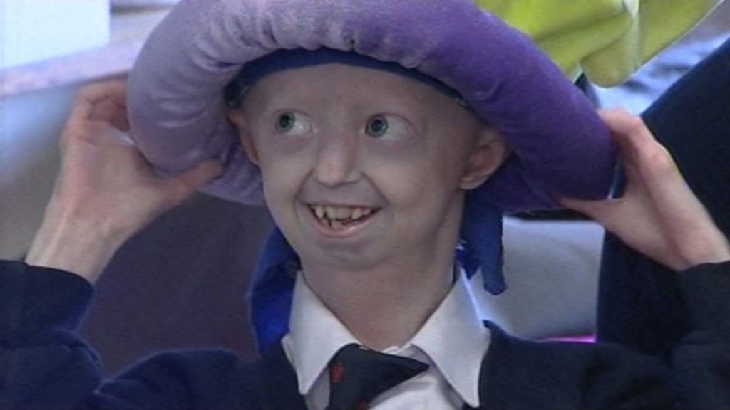 Hayley Okines: Bexhill funeral for progeria campaigner ...  Hayley Okines: ...