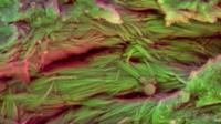 Collagen fibres