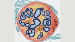 صورة لإحدى الخلايا