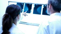 Doctores mirando mamografías