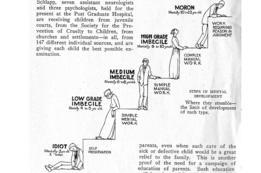 Ilustración en un artículo para los que se dedicaban a la eugenesia. Muestra varios grados de deficientes mentales juveniles, desde idiota hasta tarado, pasando por tres grados de imbecilidad.