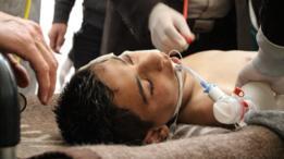 Niño sirio recibiendo tratamiento médico.