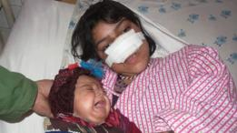 Reza Gul en espera de ser enviada a Turquía para un tratamiento de su nariz