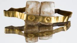 Dentadura en oro con dos dientes inferiores. Copia de la descubierta en una tumba en Etruria, Italia, de circa 700 a.C.