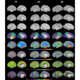 Reconstrucción en 3D de la superficie del cerebro de los recién nacidos, a partir de imágenes por resonancia magnética (IRM).