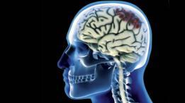 Un escáner genérico de una lesión cerebral