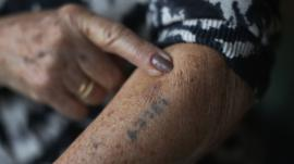 Finger points to Auschwitz tattoo on arm