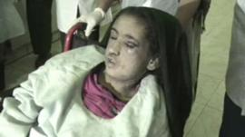 Fifteen-year-old Sahar Gul in a wheel chair with black eyes and scars on her face.