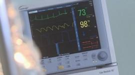 Heart monitor machine