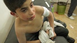 A wounded boy in Homs