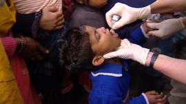 Child being given polio vaccine