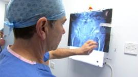 Dr James Wootton looks at hip X-ray