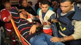 Palestinian medical workers wheel a wounded Palestinian journalist on a stretcher to Al-Shifa hospital in Gaza City